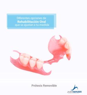 protesis-removible
